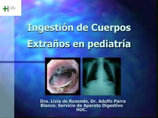 Ingestión de Cuerpos Extraños en pediatría