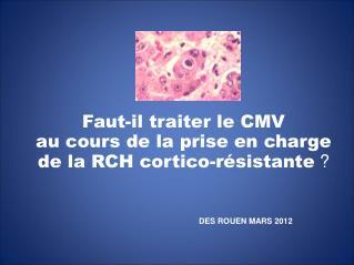 Faut-il traiter le CMV  au cours de la prise en charge de la RCH cortico-résistante  ?