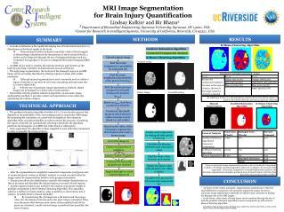 MRI Image Segmentation for Brain Injury Quantification