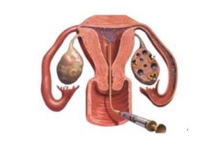 HVH Kunstmatige zwangerschap en meer