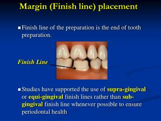 Margin (Finish line) placement Finish line of the preparation is the end of tooth preparation.