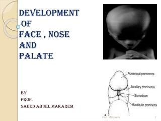 DEVELOPMENT  OF  FACE , NOSE  AND  PALATE