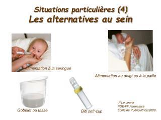 Situations particulières (4) Les alternatives au sein