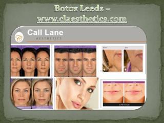Botox Leeds -www.claesthetics.com
