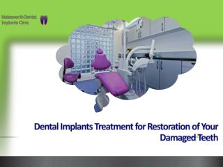 Dental Implants Treatment For Restoration Of Your Damaged Te