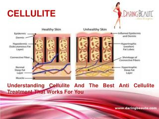 Understanding Cellulite And The Best Cellulite Treatment