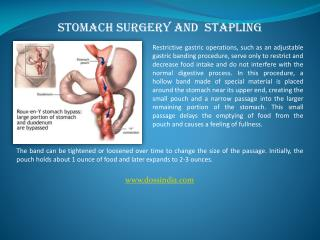Stomach Surgeon, Stomach Stapling Specialist in Pune