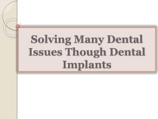 Solving Many Dental Issues Though Dental Implants