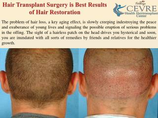 Hair Transplant Surgery is Best Results of Hair Restoration