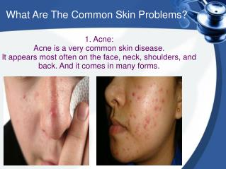 What Are The Common Skin Problems?