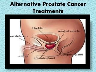 Alternative Prostate Cancer Treatments
