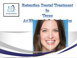 Retention Dental Treatment in Texas At Hiremath Orthodontics