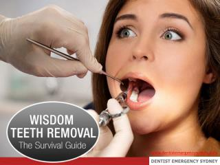 Wisdom Teeth Removal - The Survival Guide