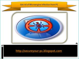 How To Remove Microengine