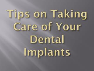 Tips on Taking Care of Your Dental Implants