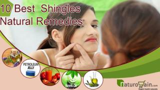 Best Known Shingles Natural Remedies For Quick Relief