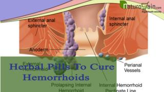 Herbal Pills To Cure Hemorrhoids Problem