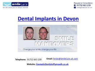 Dental Implants Devon