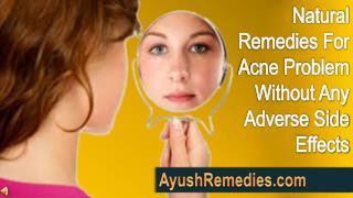 Natural Remedies For Acne Problem Without Any Adverse Side E