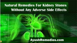 Natural Remedies For Kidney Stones Without Any Adverse Side