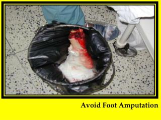 Avoid Foot Amputation