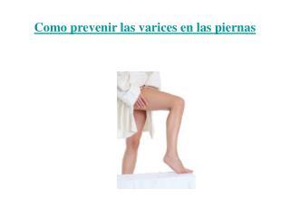 Como prevenir las varices en las piernas