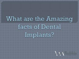 What are the Amazing facts of Dental Implants?