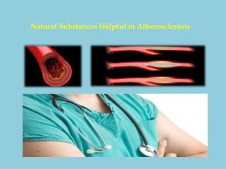 Natural Substances Helpful in Atherosclerosis