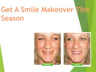 Get A Smile Makeover This Season