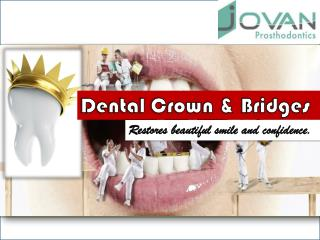 Dental Crown & Bridges Restores Beautiful Smile & Confidence