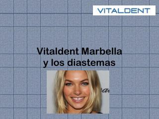 Vitaldent Marbella y los diastemas