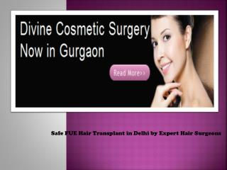 Fue Hair Transplantation Delhi