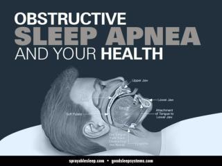 Obstructive Sleep Apnea and your Health