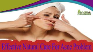 Effective Natural Cure For Acne Problem