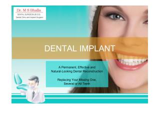 Dental Implants PPT | Dr. Bhalla Dental Clinic Ahmedabad
