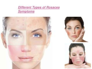 Different Types of Rosacea Symptoms
