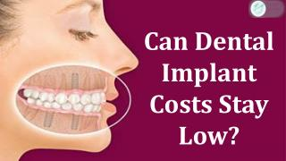 Can Dental Implant Costs Stay Low?