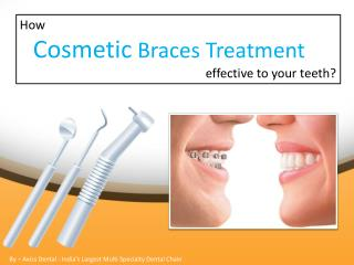 How is Cosmetic Braces treatment effective to your teeth?