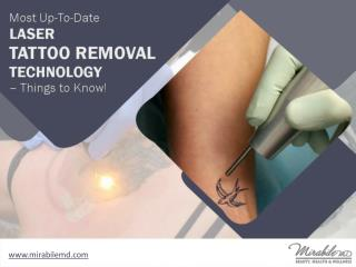 Laser Tattoo Removal in Kansas City - Things to Know!