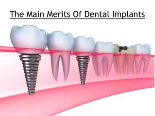 The Main Merits Of Dental Implants