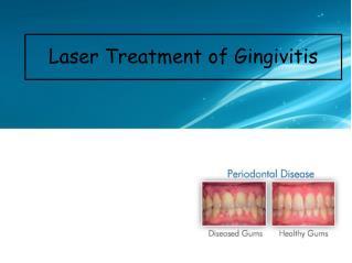 Laser Treatment of Gingivitis