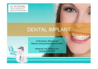 Dental Implants | Dr. Bhalla Dental Clinic