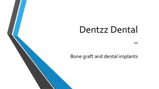 Dentzz Dental on dental implants and bone graft