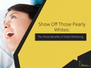 Show Off Those Pearly Whites: The Three Benefits of Teeth Whitening