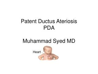 Patent Ductus Ateriosis PDA  Muhammad Syed MD