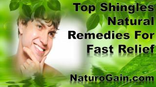 Top Shingles Natural Remedies For Fast Relief