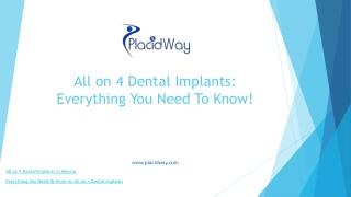 All on 4 Dental Implants: Everything You Need To Know!