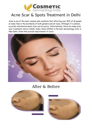 Acne Scar & Spots Treatment in Delhi - AAYNA