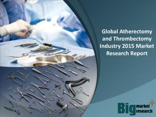 Global Atherectomy and Thrombectomy Industry 2015 - Size, Share, Demand, Growth & Opportunities