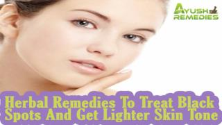 Herbal Remedies To Treat Black Spots And Get Lighter Skin Tone